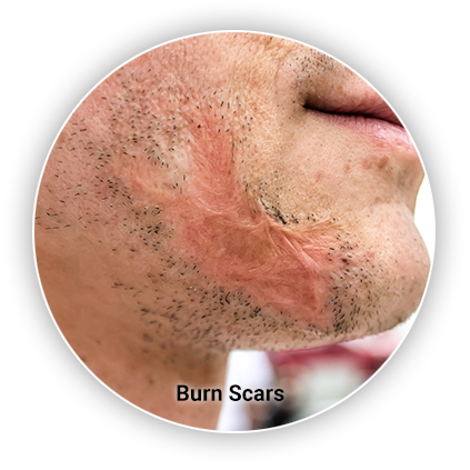 Burn Scar Removal